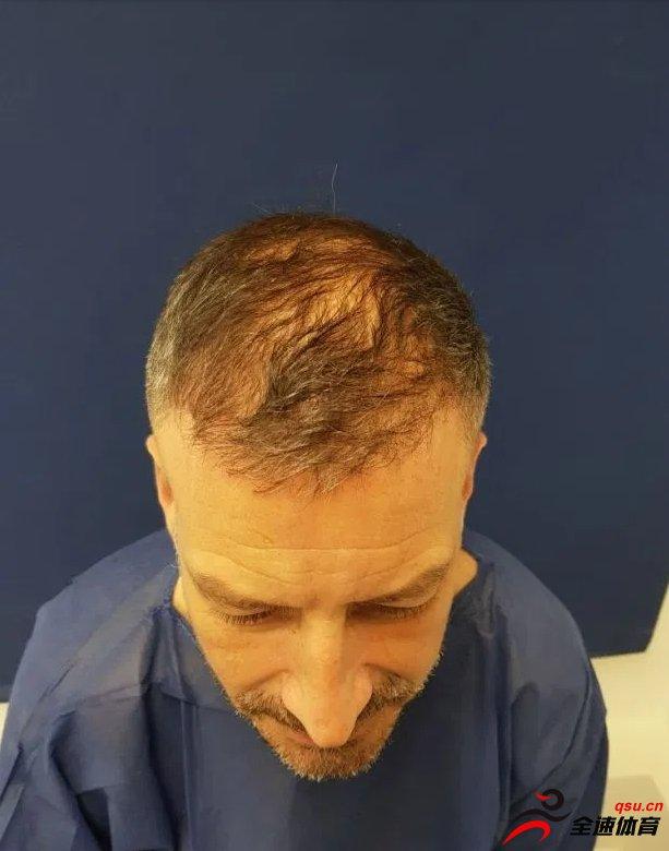 前英超裁判马克-克拉滕伯格近日接受了植发手术